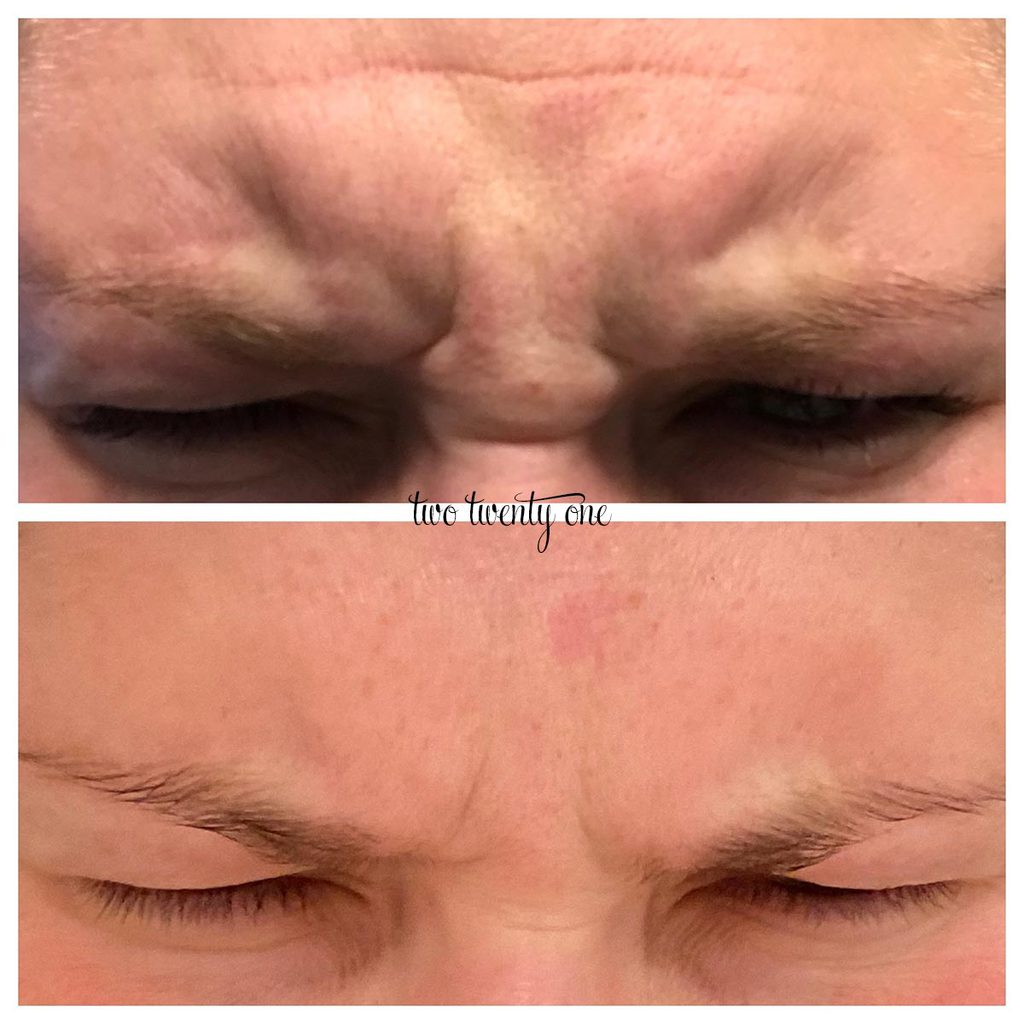 botox 11s before and after