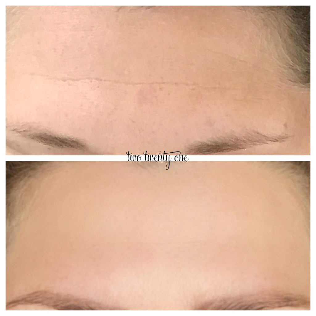 botox forehead before and after