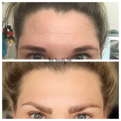 Botox Before and After – My Botox Experience